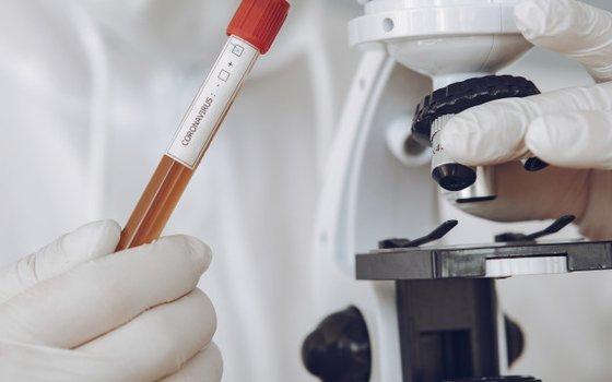 В Смоленской области провели почти 50 тысяч исследований на коронавирус